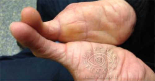 A Palmist Shows Two Fingers To Convention